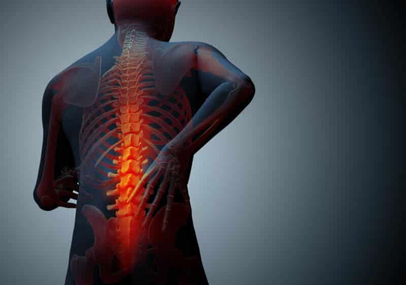 Kiropraktia