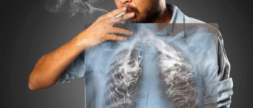 rak pluća - uzrok